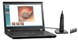 Interacoustics Viot Video Otoscope